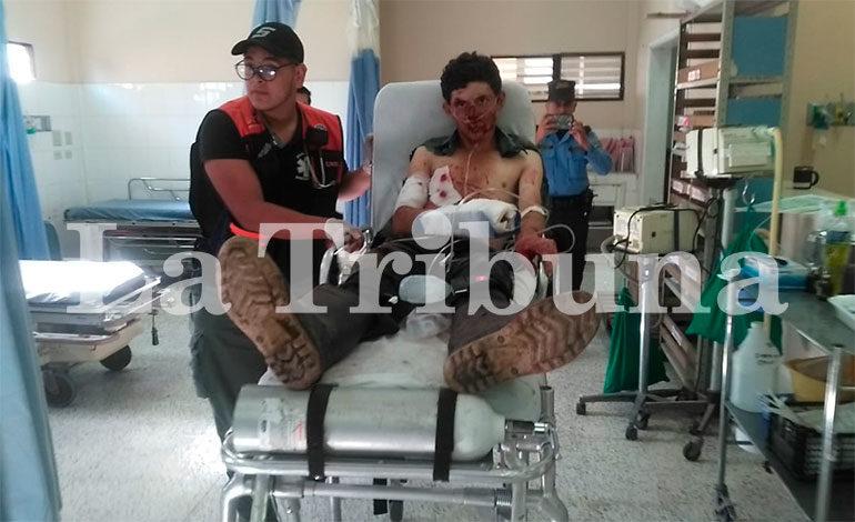 Cuatro heridos durante allanamiento en Santa Rosa de Copán