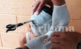 Niña de 7 años llega al hospital con tijera incrustada en su cabeza (Video)