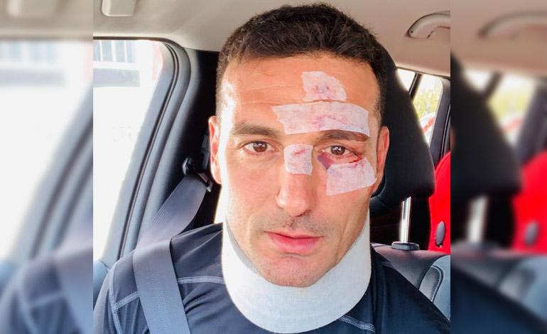 Gran susto se llevó DT de Argentina tras sufrir accidente
