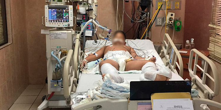 Al menos dos menores luchan por salvar su vida del dengue grave, en la sala de Cuidados Intensivos del IHSS.