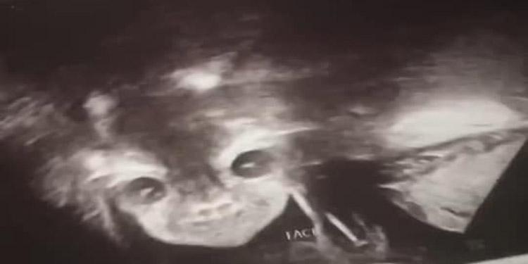 Mujer queda horrorizada al ver el ultrasonido de su bebé