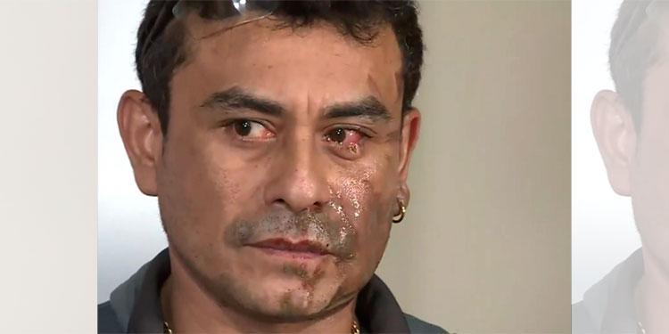 Un hombre arroja ácido a otro en ataque xenófobo en Milwaukee
