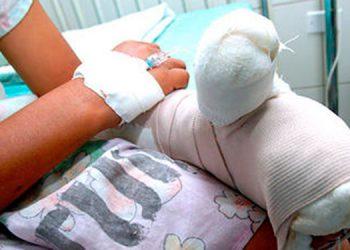 Uno de los niños resultó con quemaduras en los dedos, luego de haber manipulado pólvora.