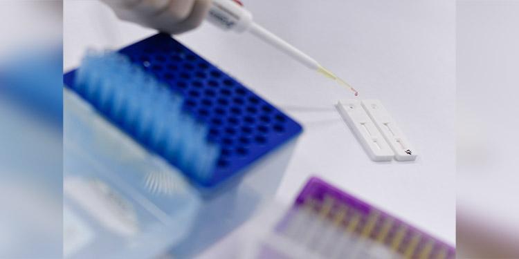 Científicos de EEUU buscan inhibidores de una enzima que ayuda al COVID-19