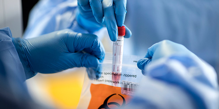 Infectólogo: en la reinfección se debe analizar el virus inicial y el recurrente