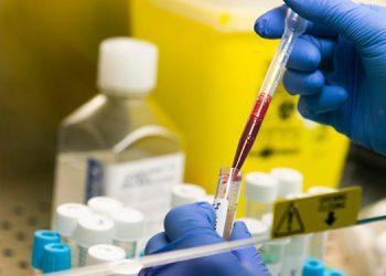 Ministra de Ciencia dice que Venezuela estudia 40 moléculas contra COVID-19