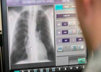 COVID-19 ataca al 30% de los técnicos en radiología de Honduras