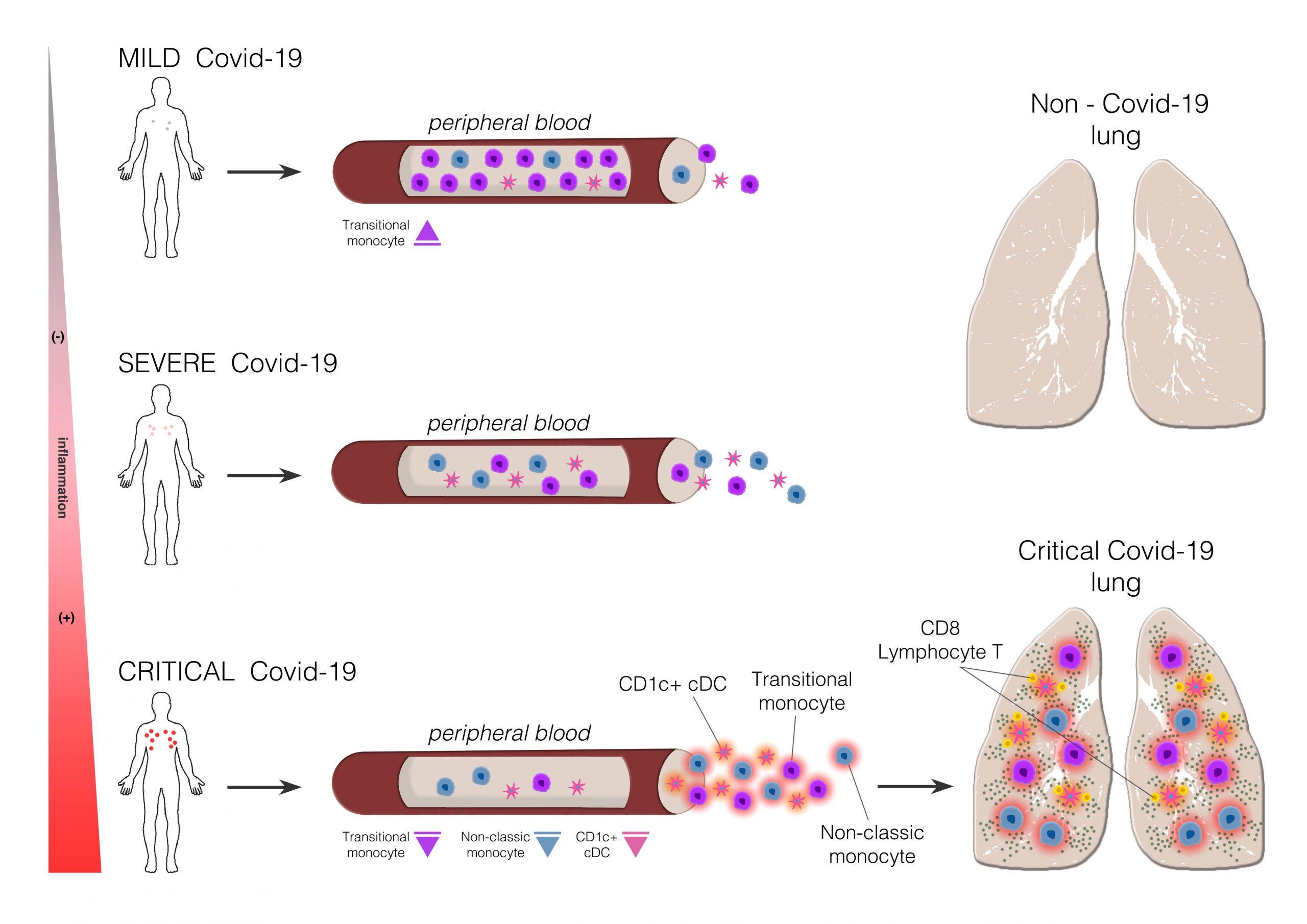 La COVID-19 afecta a distintas células del sistema inmunitario según la gravedad