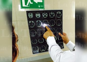 Según neurólogo 200 mil hondureños sufren de epilepsia