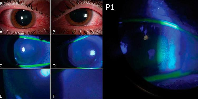 Oftalmólogos avisan de daños oculares por el uso de lámparas germicidas