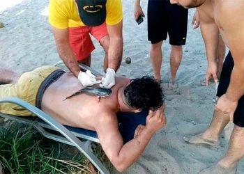 """El """"pez vaca"""" se le incrustó al joven cuando bañaba en el mar, cerca del muelle de Tela."""