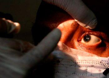 """El primer paciente de """"Hongo Negro"""" en Honduras permaneció un mes hospitalizado."""