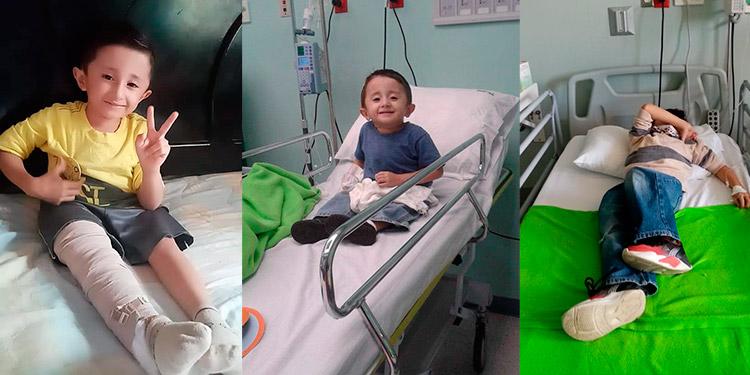 Joshua Pineda logró caminar desde los 4 años sin embargo necesita de la operación para tener más actividades y mejorar su condición de vida.